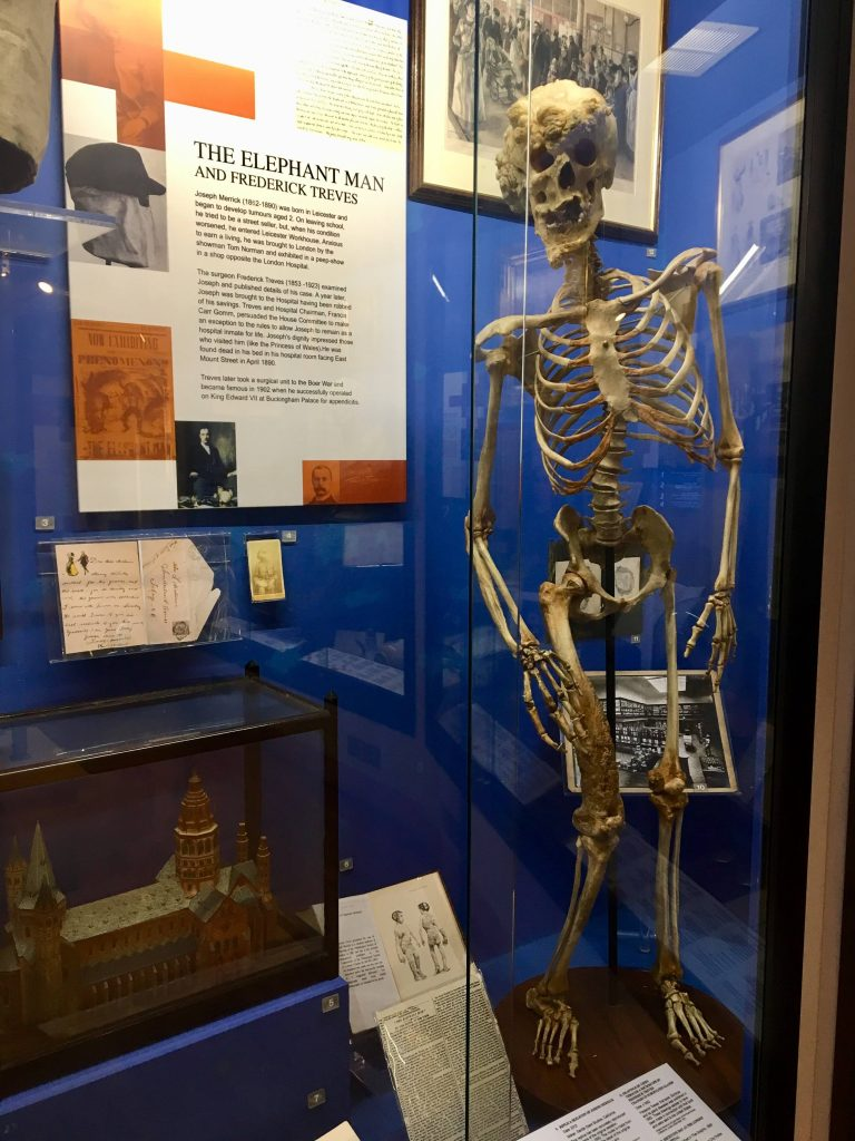 Replica skeleton of Joseph Merrick, The Elephant Man