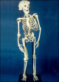 """The skeleton of Joseph Merrick, the """"Elephant Man"""", as kept in the collection of the Royal London Hospital."""